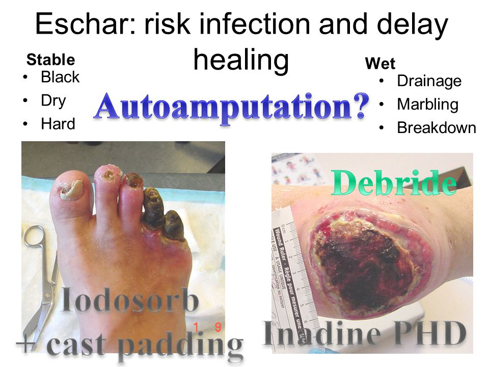Eschar: risk infection and delay healing