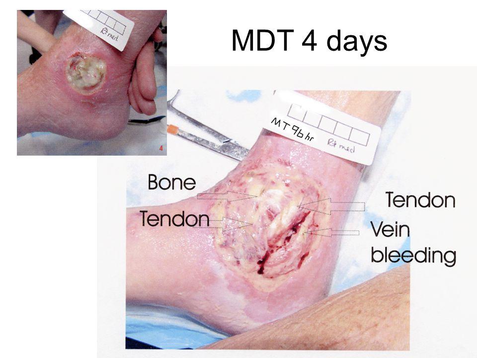 MDT 4 days 17
