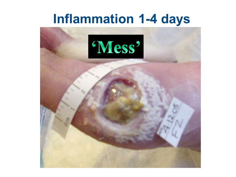 'Mess' Inflammation 1-4 days Hemostasis Platelets