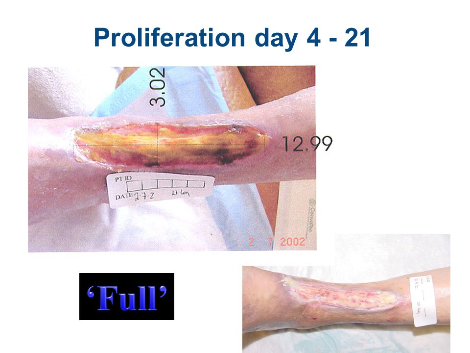 'Full' Proliferation day 4 - 21 Inflammation