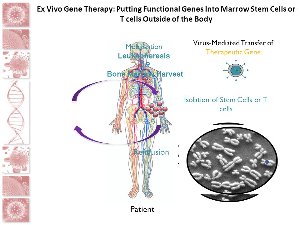Ex Vivo Gene Therapy: Putting Functional Genes Into Marrow Stem Cells or T cells Outside of the Body