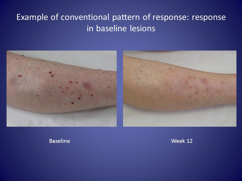 Example of conventional pattern of response: response in baseline lesions