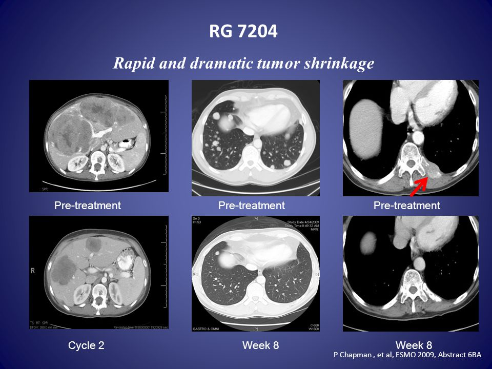 RG 7204 Rapid and dramatic tumor shrinkage