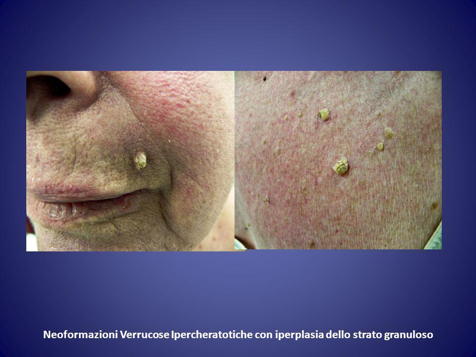 Neoformazioni Verrucose Ipercheratotiche con iperplasia dello strato granuloso