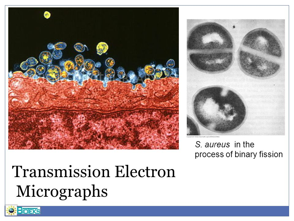 Transmission Electron Micrographs