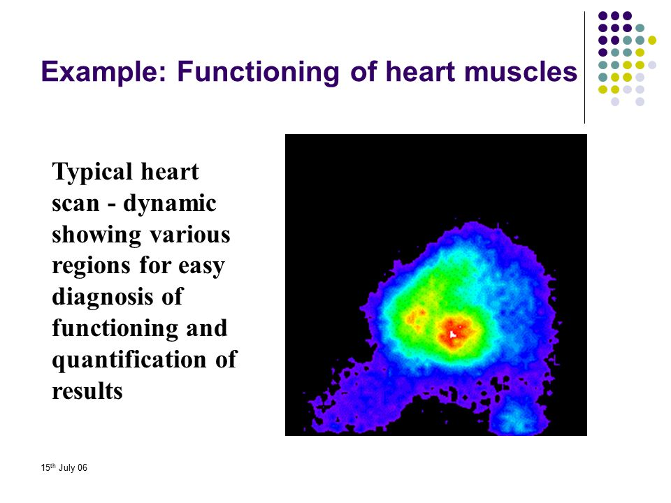 Example: Functioning of heart muscles