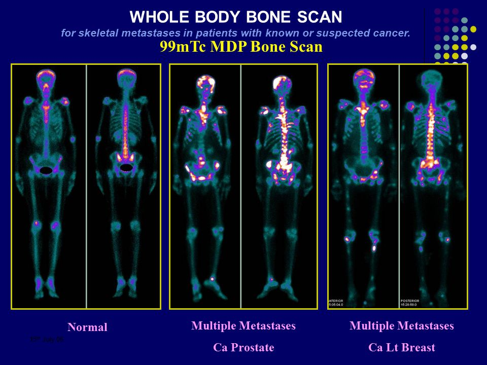 for skeletal metastases in patients with known or suspected cancer.