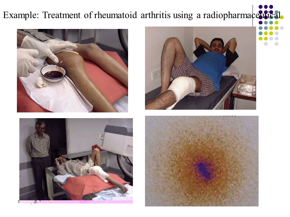 Example: Treatment of rheumatoid arthritis using a radiopharmaceutical
