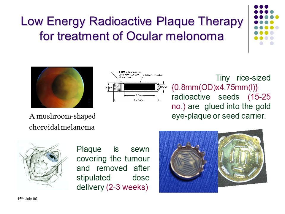 Low Energy Radioactive Plaque Therapy for treatment of Ocular melonoma