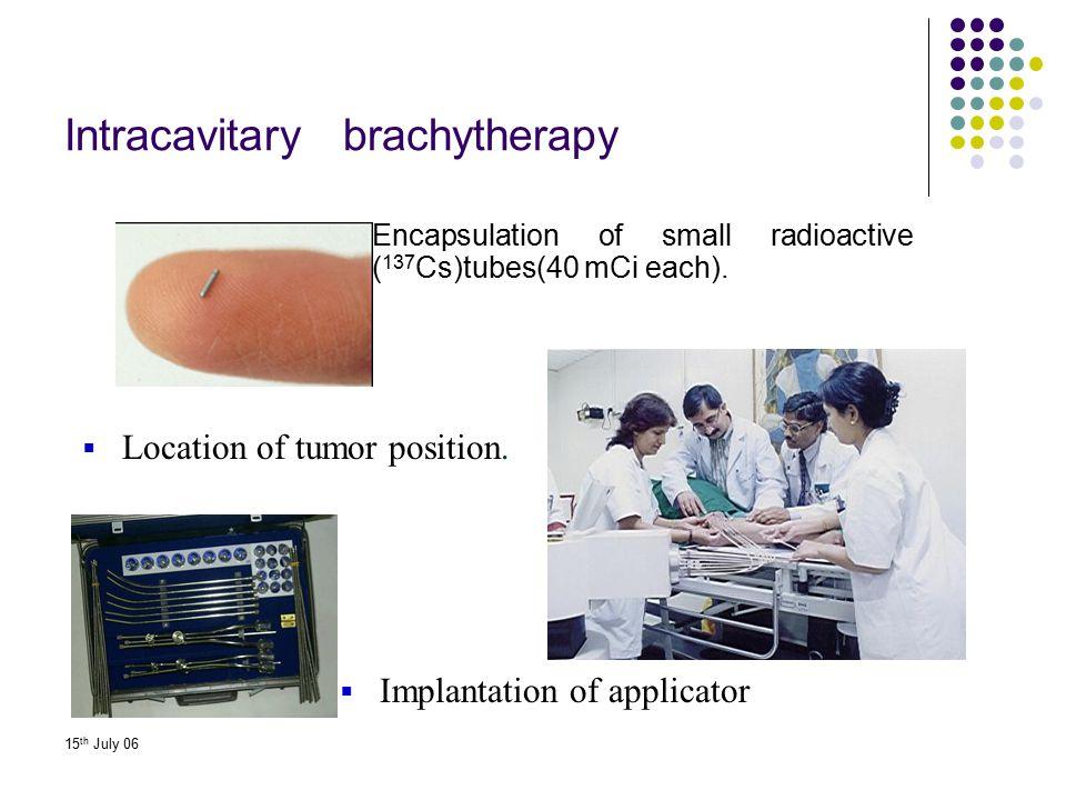 Intracavitary brachytherapy