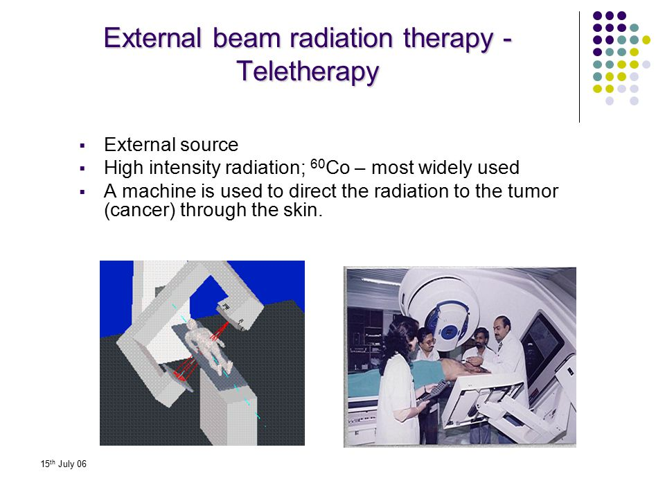 External beam radiation therapy - Teletherapy