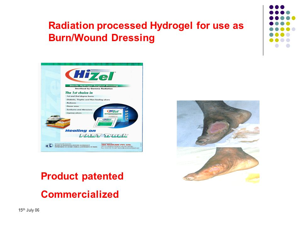 Radiation processed Hydrogel for use as Burn/Wound Dressing