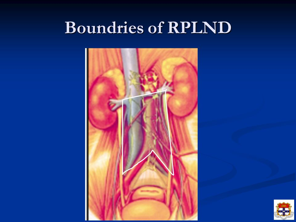 Boundries of RPLND