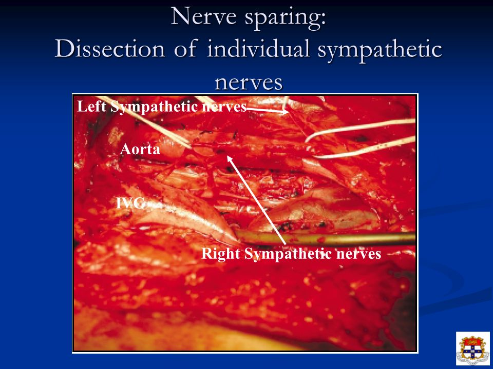 Nerve sparing: Dissection of individual sympathetic nerves