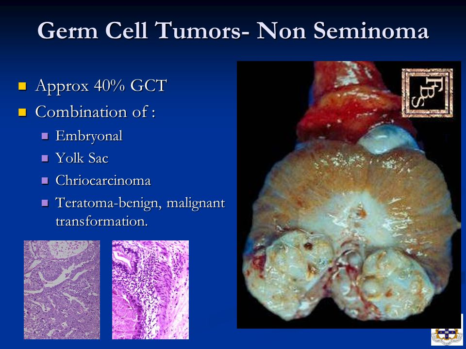 Germ Cell Tumors- Non Seminoma