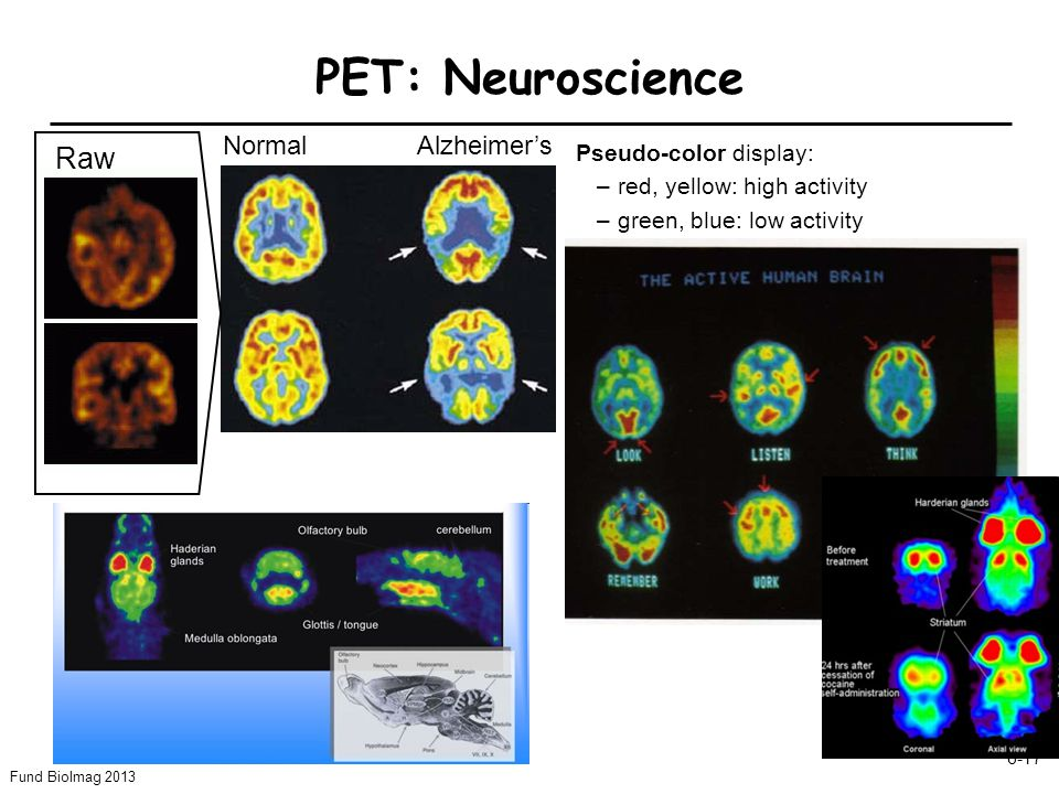 PET: Neuroscience Raw Normal Alzheimer's Pseudo-color display: