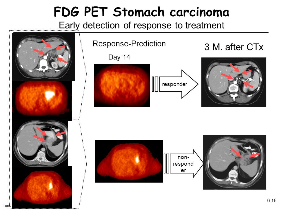 FDG PET Stomach carcinoma Early detection of response to treatment