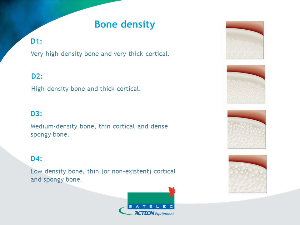 Bone density D1: Very high-density bone and very thick cortical. D2: High-density bone and thick cortical.