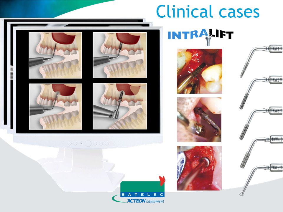 Clinical cases