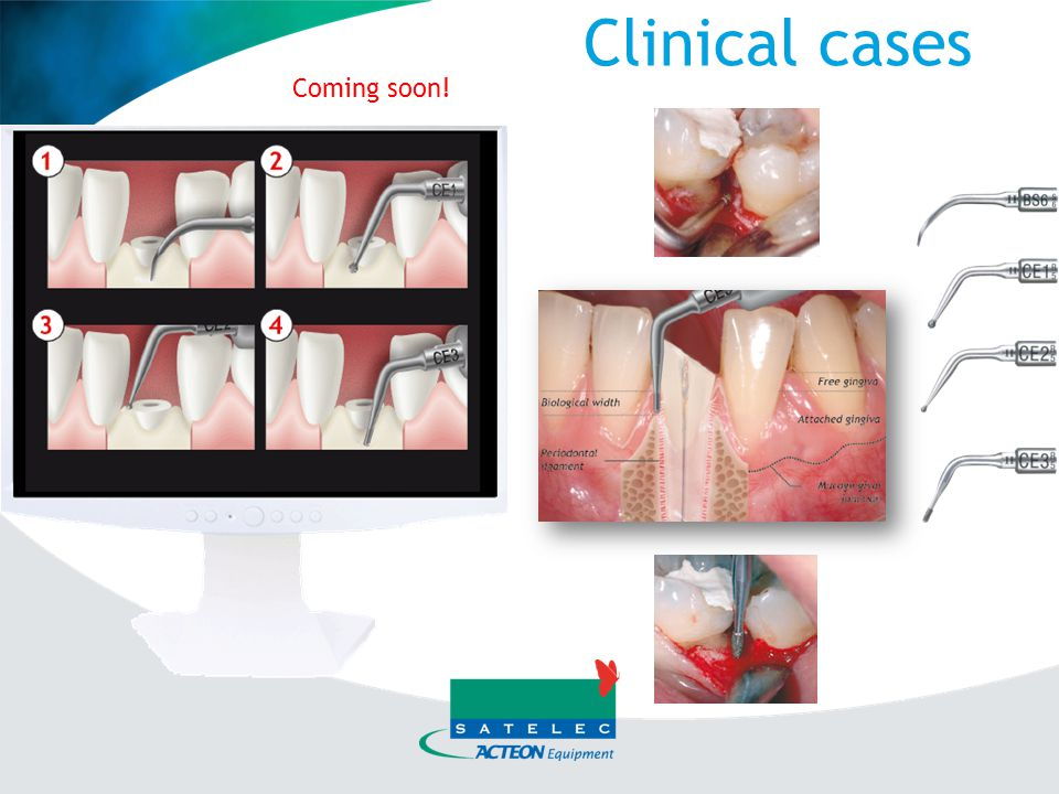 Clinical cases Coming soon!