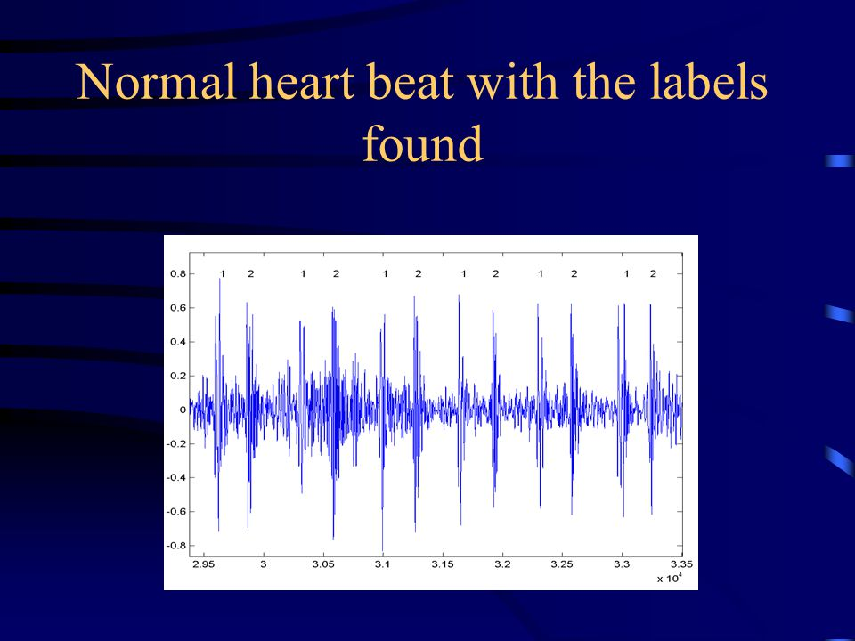 Normal heart beat with the labels found