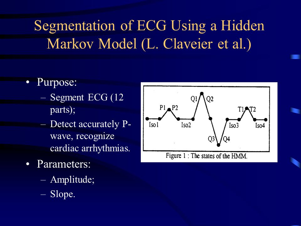 Segmentation of ECG Using a Hidden Markov Model (L. Claveier et al.)