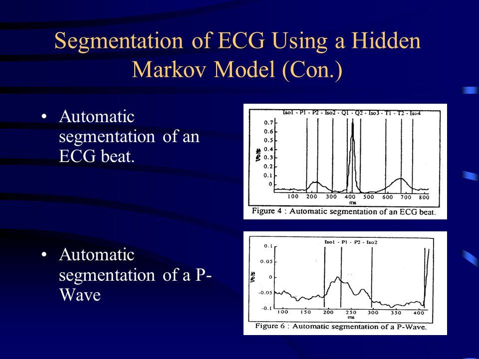 Segmentation of ECG Using a Hidden Markov Model (Con.)