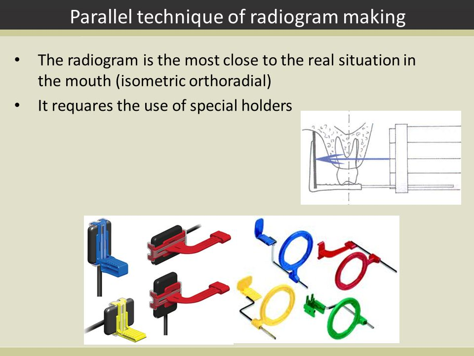 Parallel technique of radiogram making