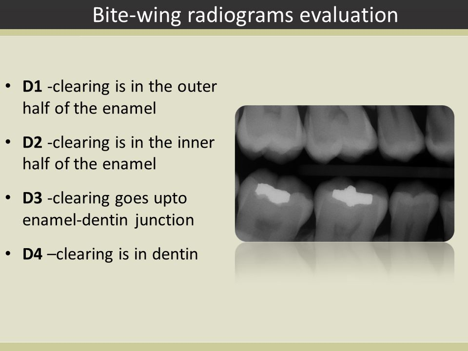 Bite-wing radiograms evaluation