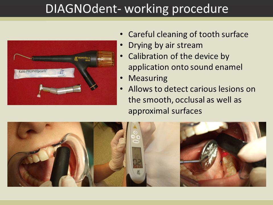 DIAGNOdent- working procedure