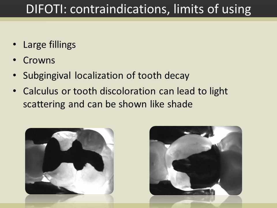 DIFOTI: contraindications, limits of using