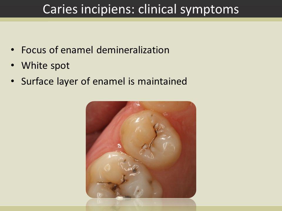 Caries incipiens: clinical symptoms