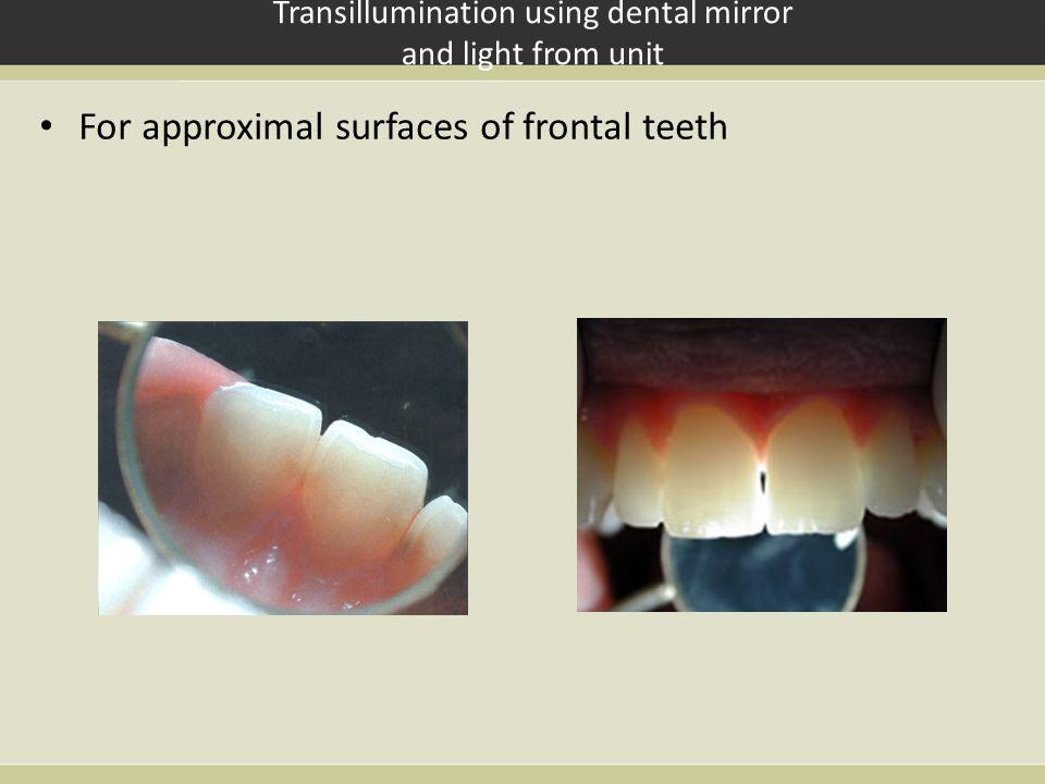 Transillumination using dental mirror and light from unit
