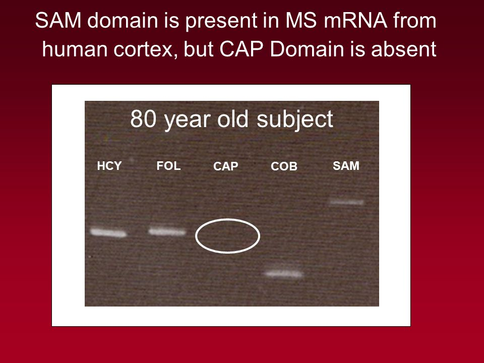 SAM domain is present in MS mRNA from human cortex, but CAP Domain is absent