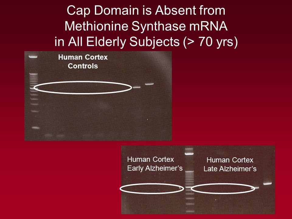 Human Cortex Late Alzheimer's