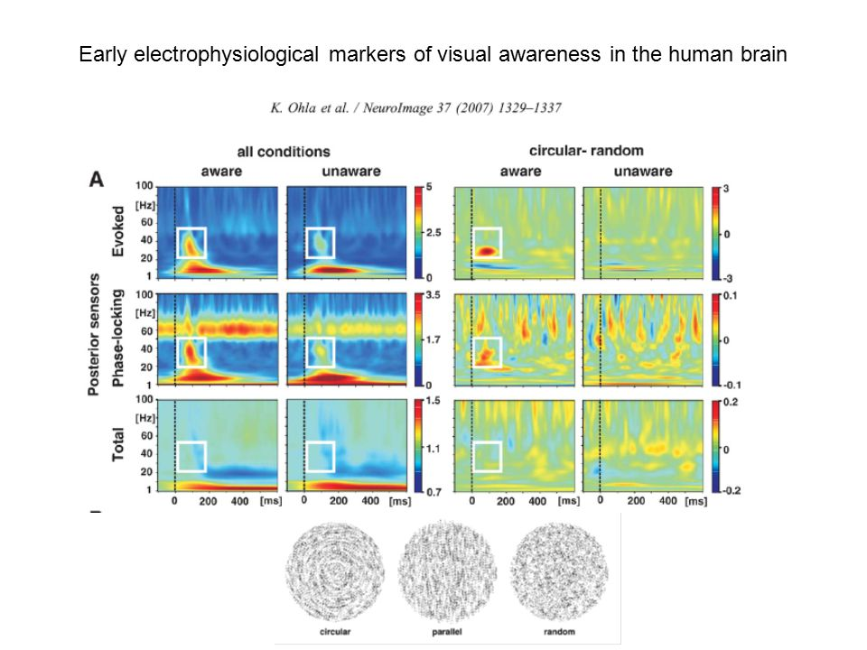 Early electrophysiological markers of visual awareness in the human brain