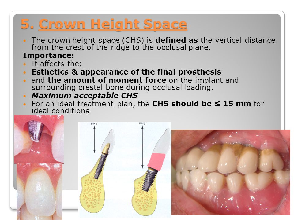 5. Crown Height Space The crown height space (CHS) is defined as the vertical distance from the crest of the ridge to the occlusal plane.
