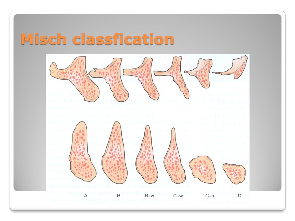 Misch classfication