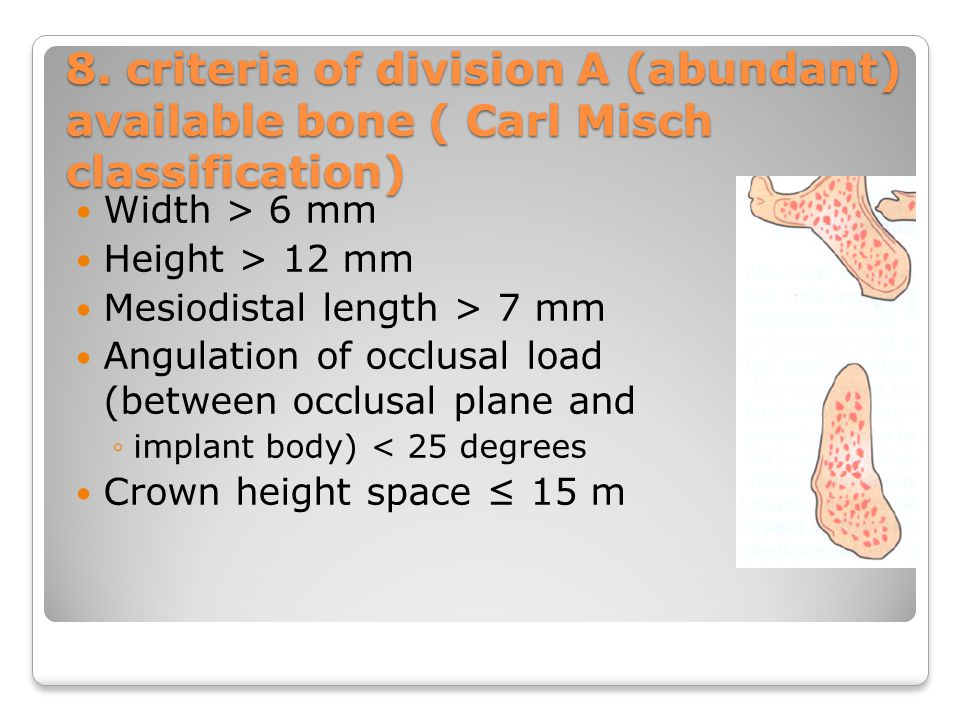 8. criteria of division A (abundant) available bone ( Carl Misch classification)