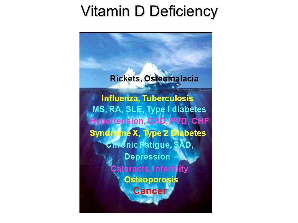 Vitamin D Deficiency Rickets, Osteomalacia Influenza, Tuberculosis