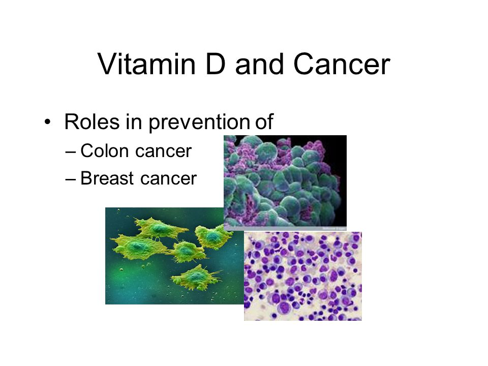 Vitamin D and Cancer Roles in prevention of Colon cancer Breast cancer