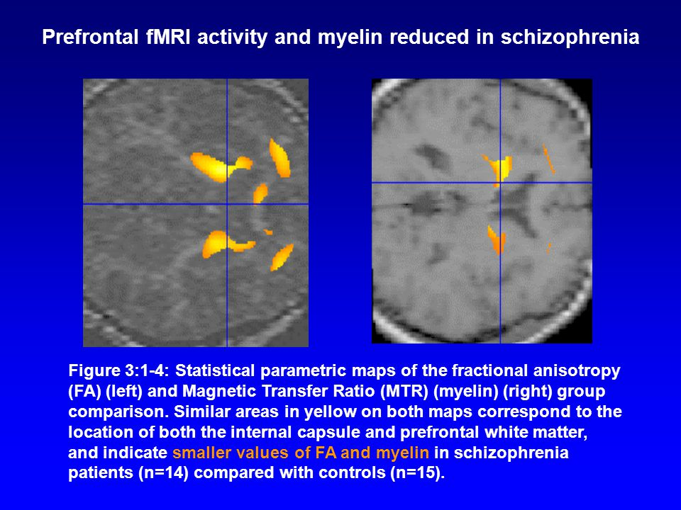 Prefrontal fMRI activity and myelin reduced in schizophrenia