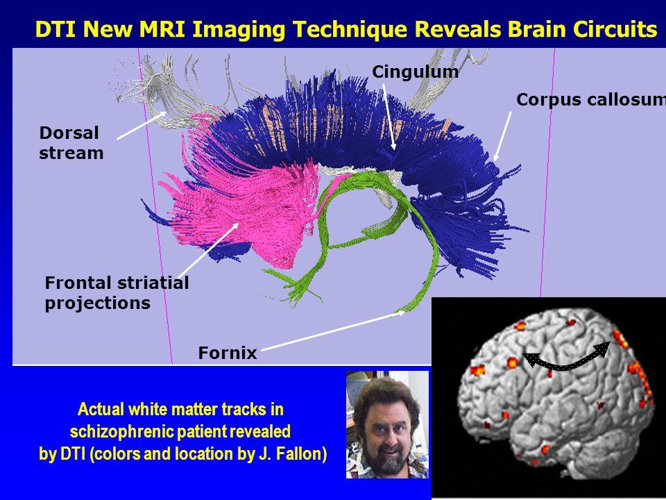 DTI New MRI Imaging Technique Reveals Brain Circuits