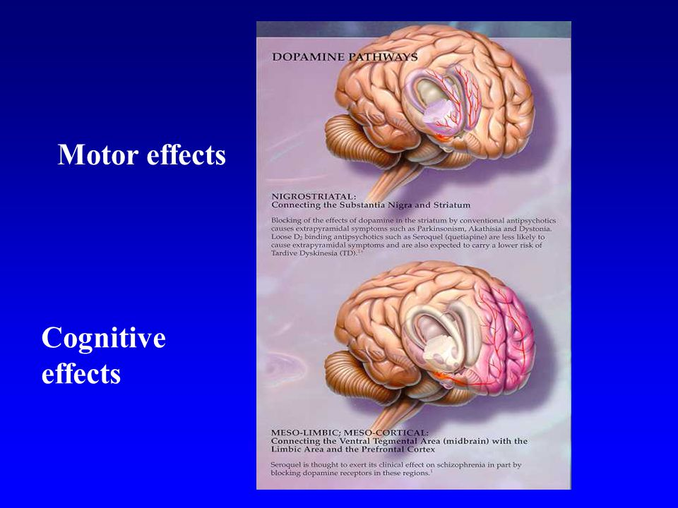 Motor effects Cognitive effects