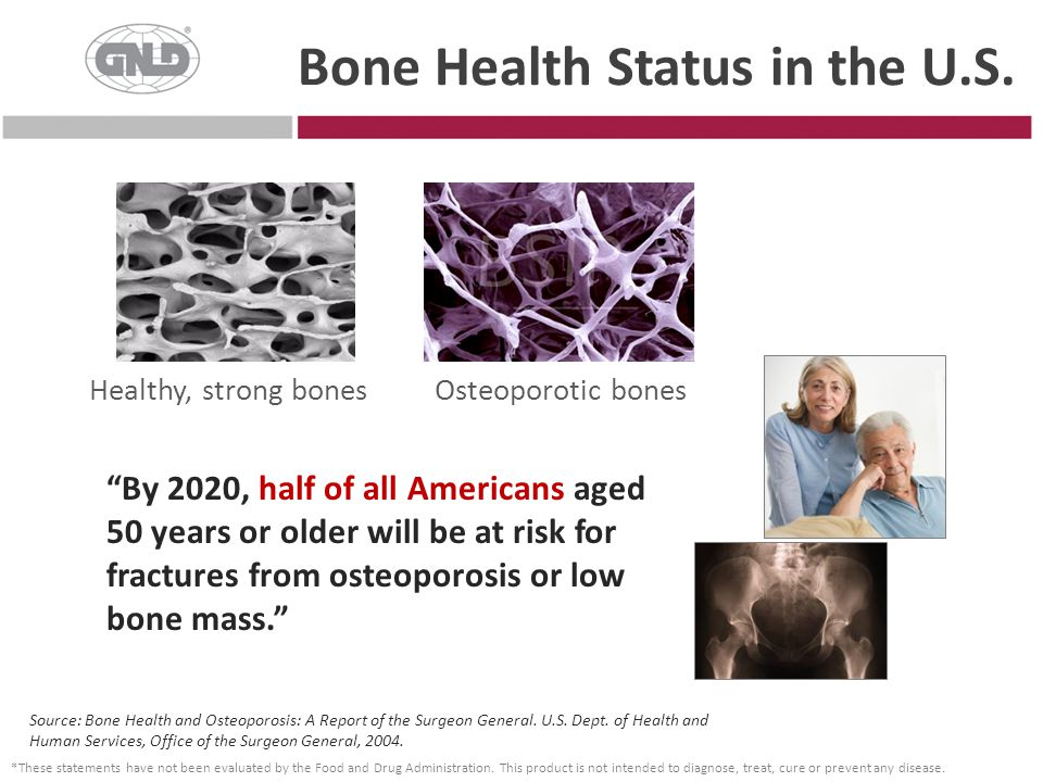 Bone Health Status in the U.S.