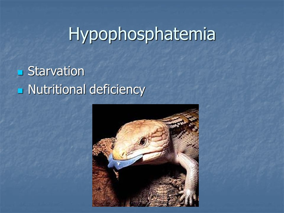 Hypophosphatemia Starvation Nutritional deficiency