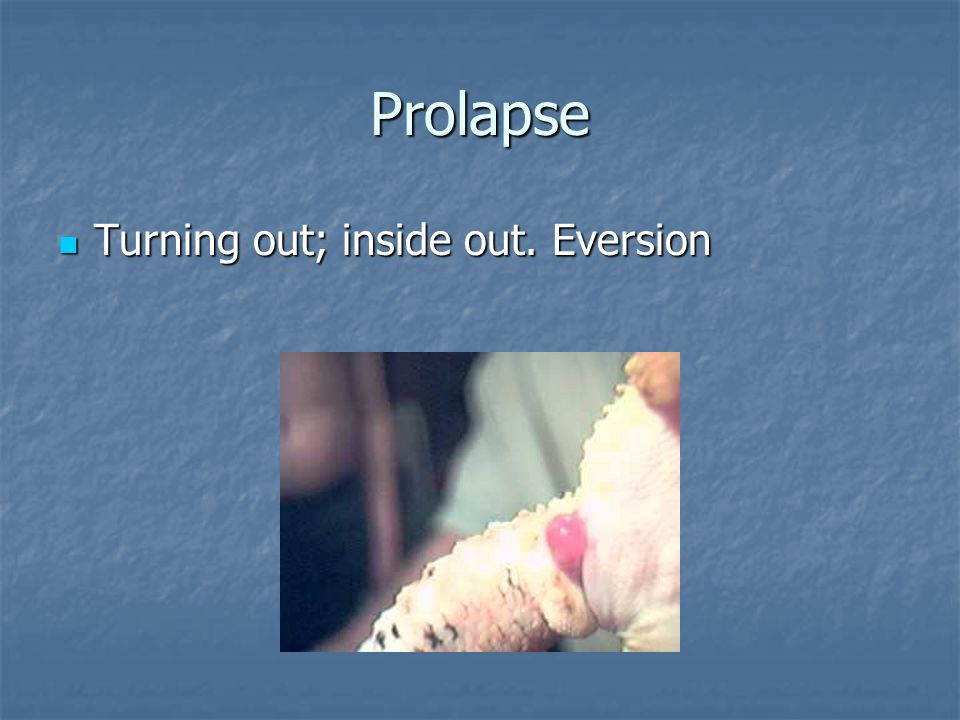 Prolapse Turning out; inside out. Eversion