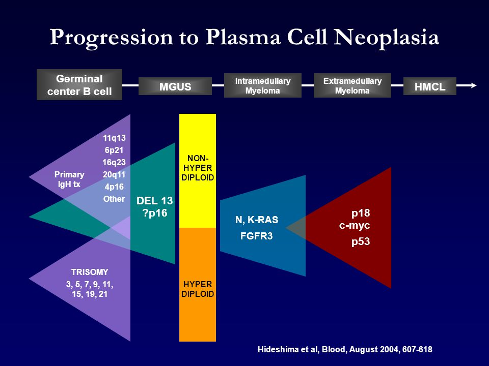 Progression to Plasma Cell Neoplasia