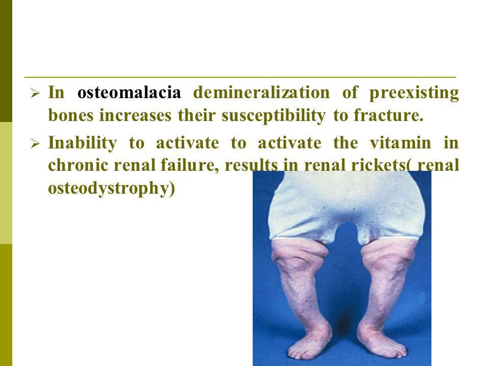 In osteomalacia demineralization of preexisting bones increases their susceptibility to fracture.