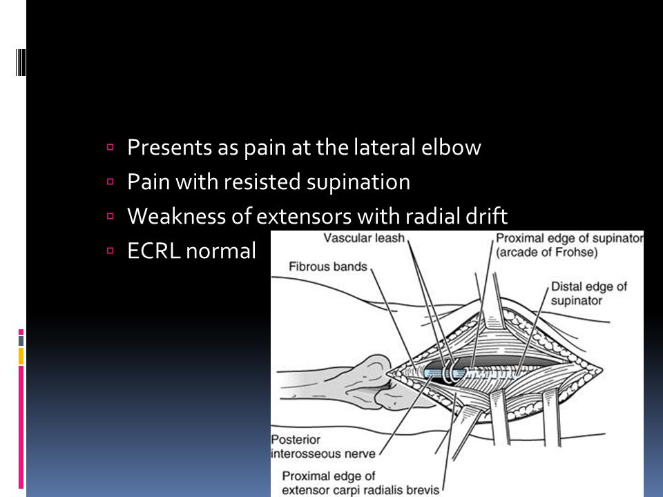 Presents as pain at the lateral elbow